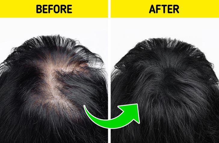 Hair Regrowth: 13 Natural Home Remedies for Hair regrowth